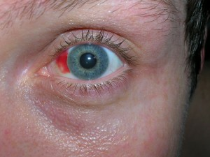 operazione miopia